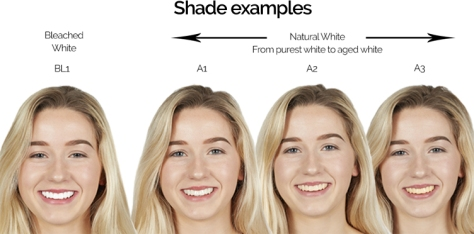 veneer-shade-guide