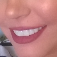 Review: INSTAsmile - Upper Clip In Veneers In Shade BL1 - BEFORE & AFTER